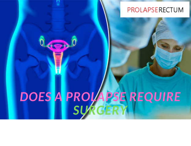 Does A Prolapse Require Surgery?