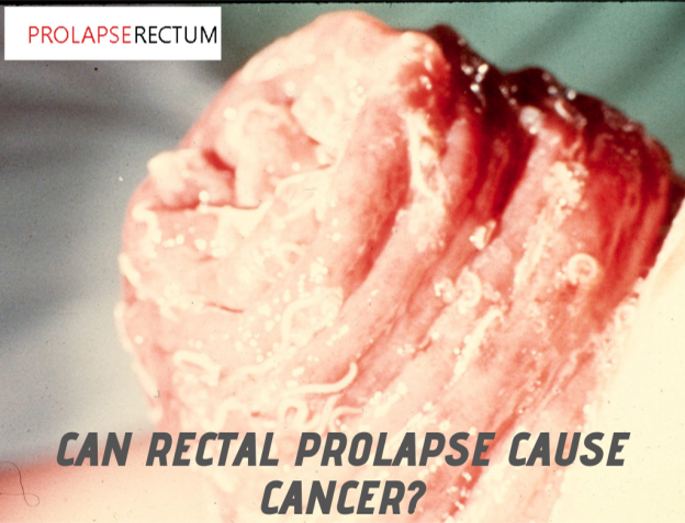 Can Rectal Prolapse Cause Cancer?