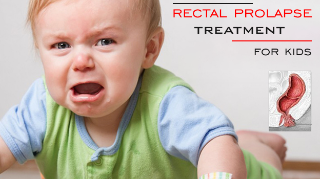 Herbal rectal prolapse treatment for kids