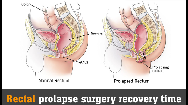 Rectal prolapse surgery recovery time