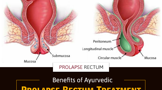 What Are The Benefits Of Ayurvedic Treatment For Rectal Prolapse?