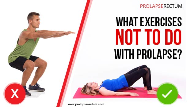 What Exercises Not To Do With Prolapse