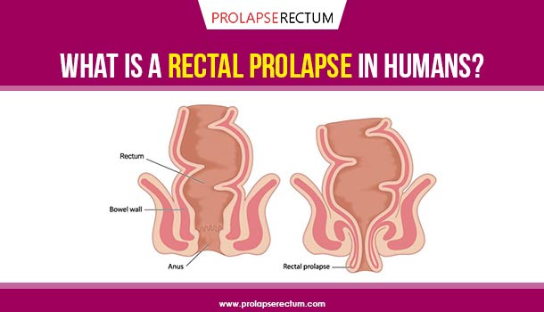 What Is A Rectal Prolapse In Humans?