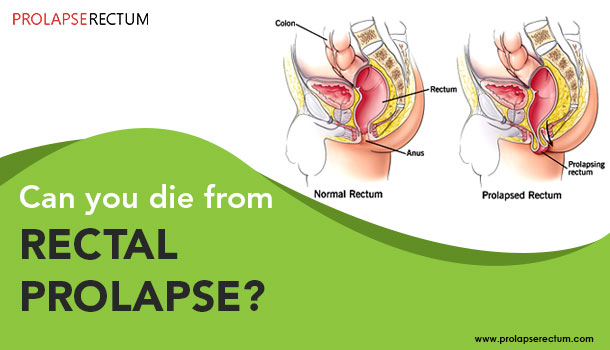 Can You Die From Rectal Prolapse?