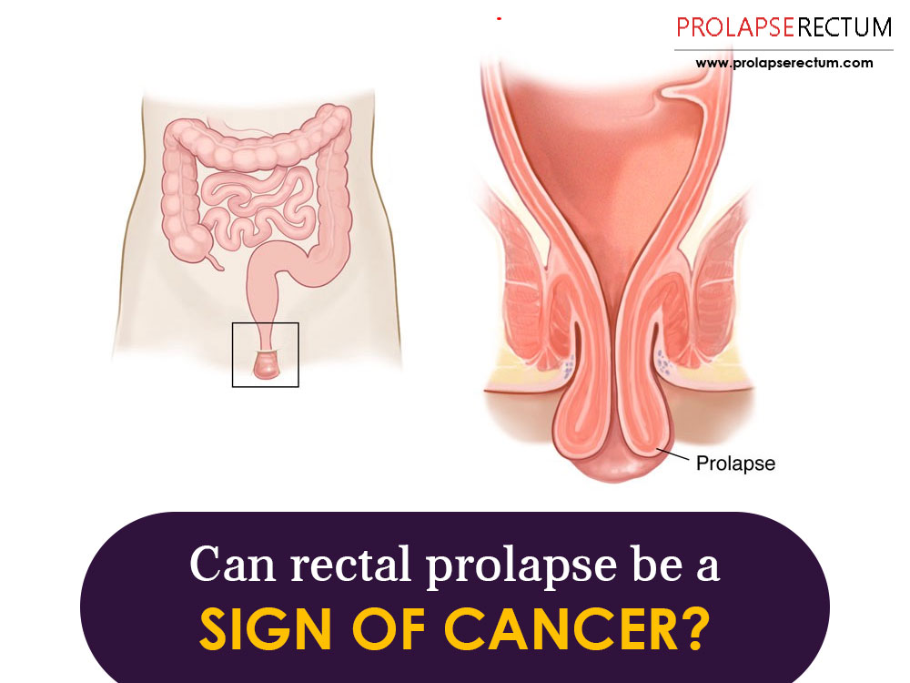 Can Rectal Prolapse Be A Sign Of Cancer?