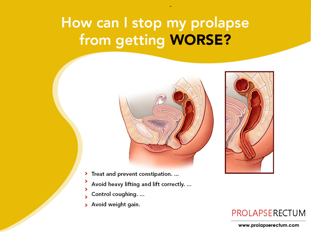 How Can I Stop My Prolapse From Getting Worse?