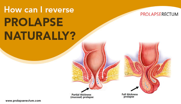 How Can I Reverse Prolapse Naturally