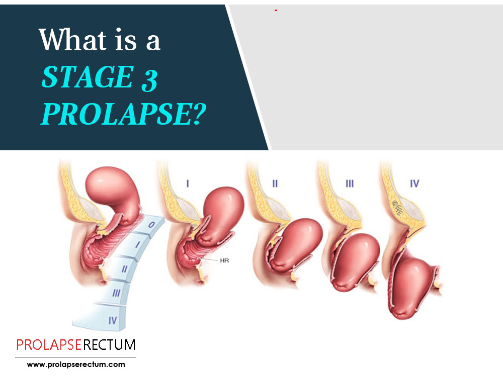 What Is A Stage 3 Prolapse?