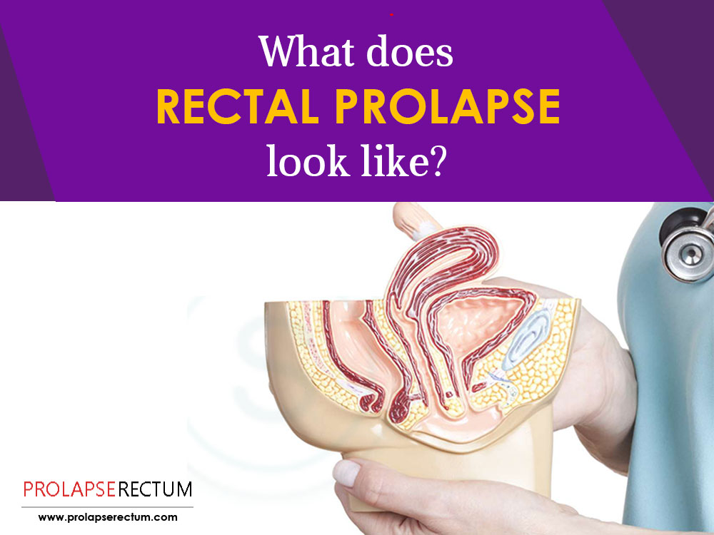 What Does Rectal Prolapse Look Like?