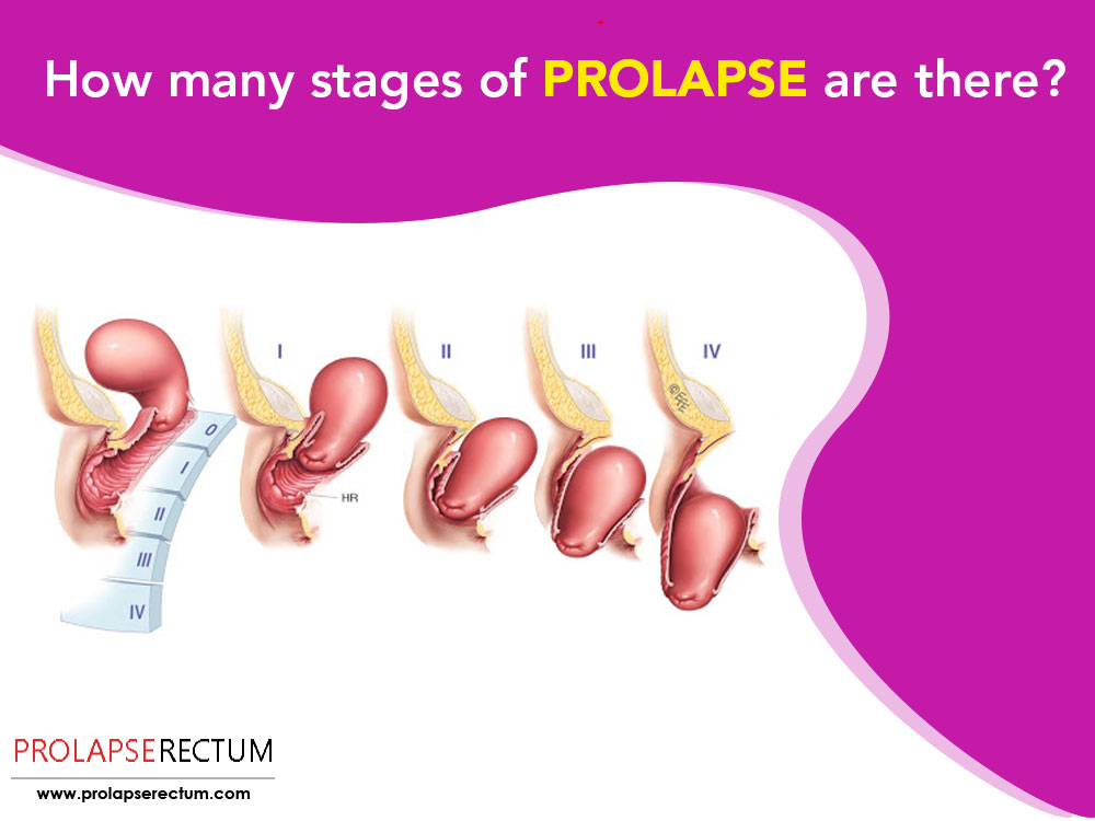 How Many Stages Of Prolapse Are There?