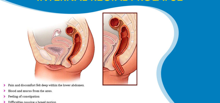 What Are The Symptoms Of Internal Rectal Prolapse?