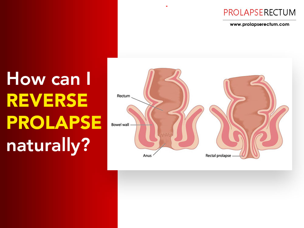 How Can I Reverse Prolapse Naturally?