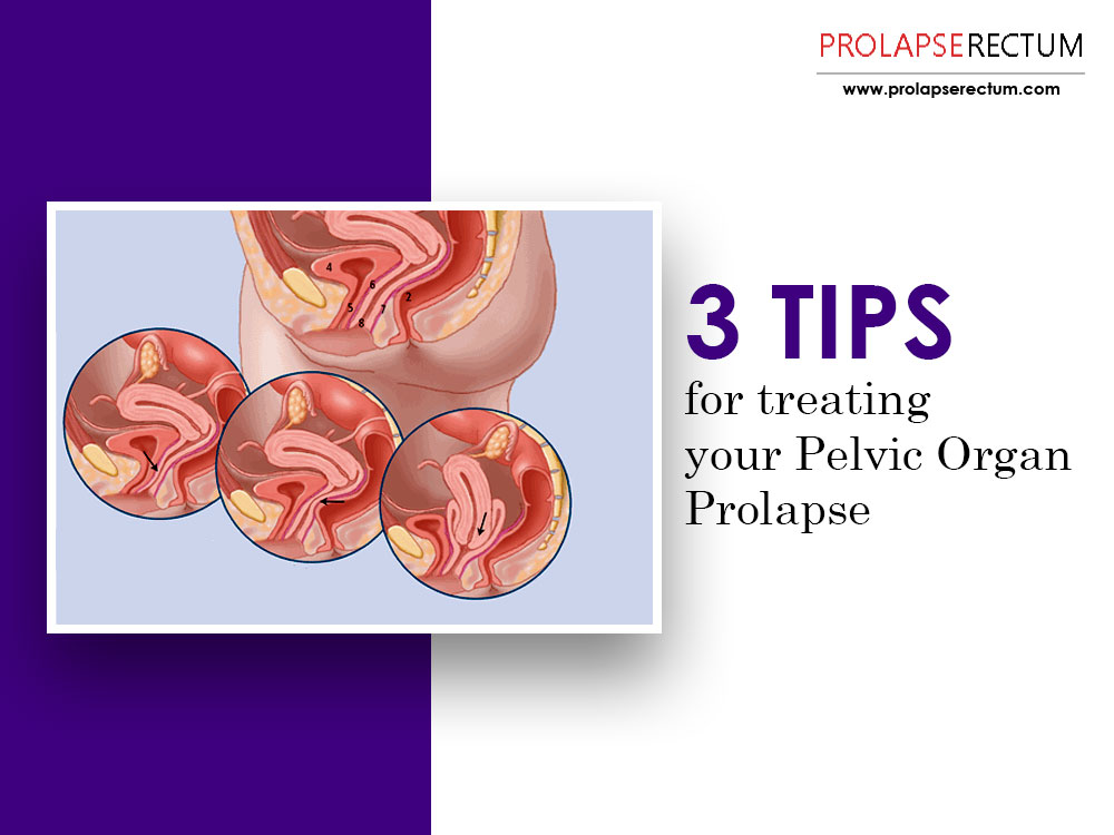 3 Tips for Treating Your Pelvic Organ Prolapse