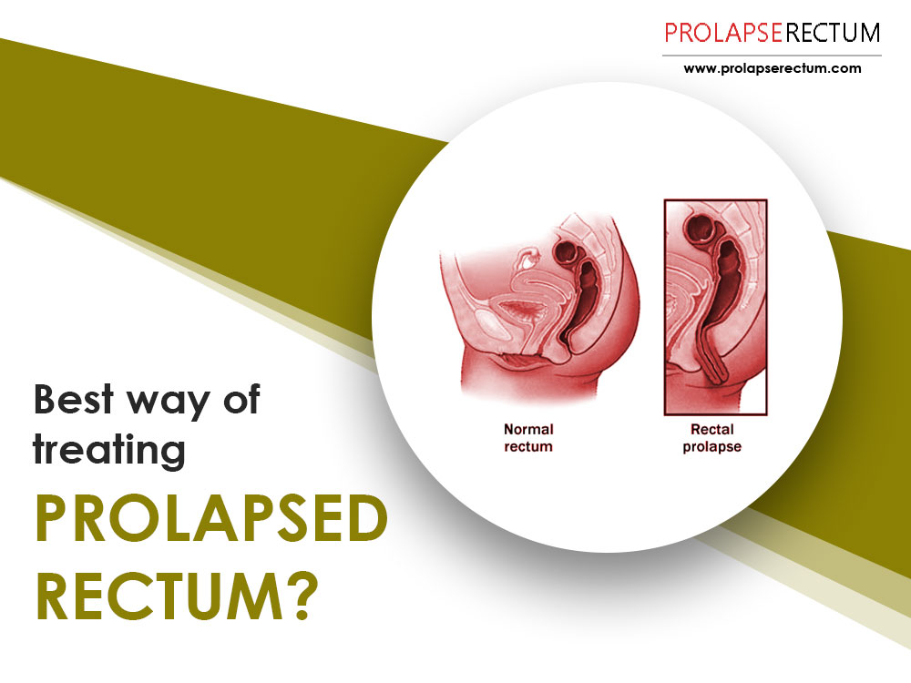 Best Way Of Treating Prolapsed Rectum