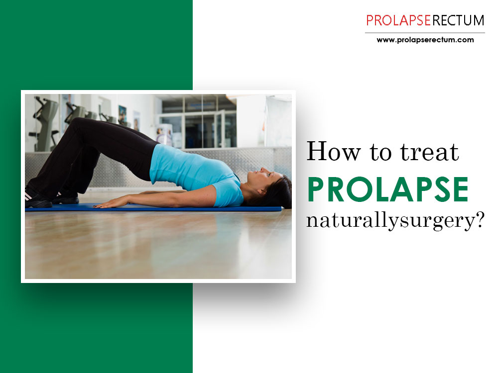 How To Treat Prolapse Naturally