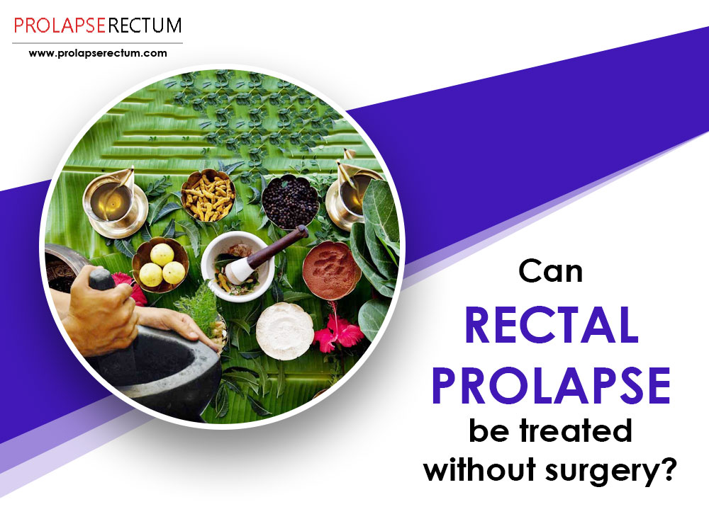 Can Rectal Prolapse Be Treated Without Surgery?