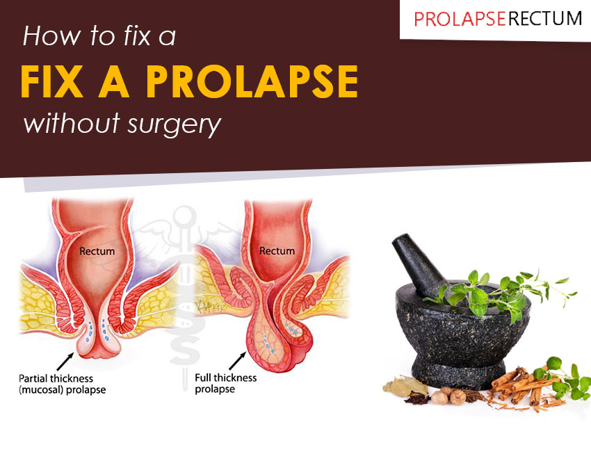 How To Fix A Prolapse Without Surgery
