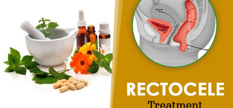 Rectocele Treatment Without Surgery
