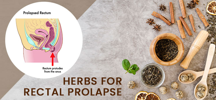 Herbs For Rectal Prolapse
