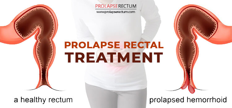 Prolapse Rectal Treatment In India