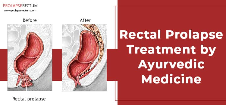Rectal Prolapse Treatment by Ayurvedic Medicine