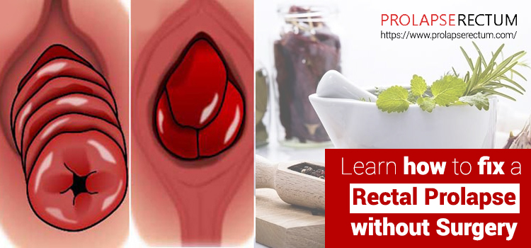 How to Fix a Rectal Prolapse without Surgery