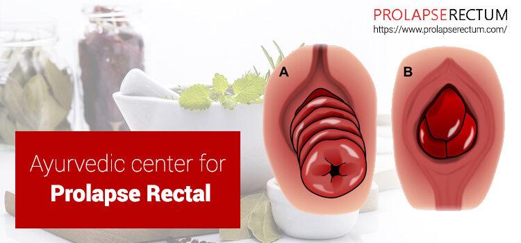 Ayurvedic Center For Prolapse Rectal